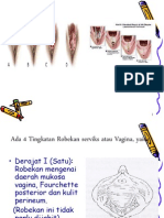 laserasi perineum.ppt