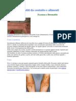 Eczema o Dermatite