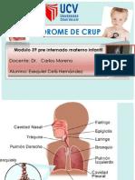 SINDROME DE CRUP EXPOSICION (2).pptx
