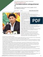 Médicos_ El VIH y La Tuberculosis Extrapulmonar No Son Un Peligro - Diario Pagina Siete