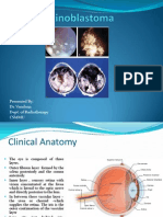 Retinoblastoma Drvandana 120403110900 Phpapp01