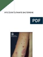 Dermatoze bacteriene
