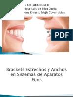 Friccion en Ortodoncia