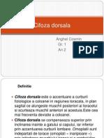 cifoza dorsala