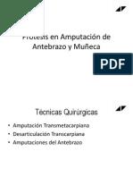 Prótesis en Amputación de Ante brazo y Muñeca