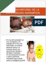 Historia Natural de sarampion