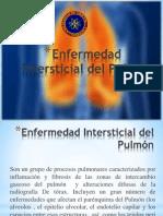 Enfermedad Intersticial del Pulmón.pptx