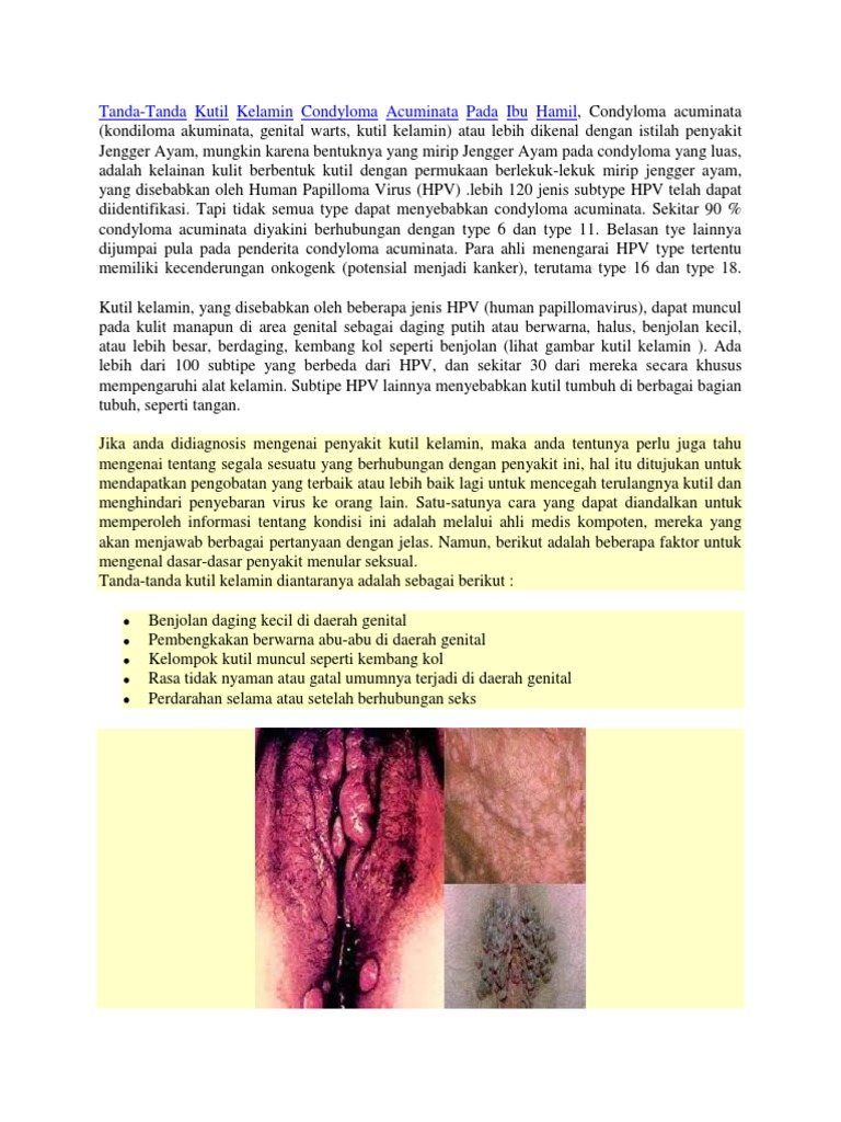 condyloma acuminata pada ibu hamil)
