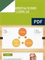 Hipertension Endocraneana - Manifestaciones Clínicas