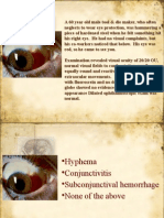 Mcq Ophthalmology