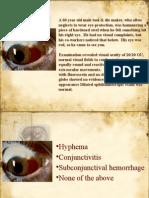 Mcq Ophthalmology