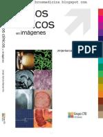 Casos Clinicos en Imagenes CTO