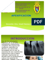 apexificacion