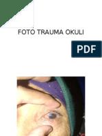 Foto Trauma Okuli