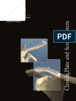 Clavicle Plate and Screw System Surgical Technique