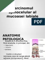 Carcinomul Spinocelular Al Mucoasei Labiale