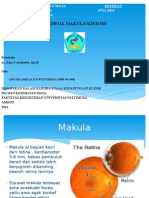Edema Makula Kistoid Referat