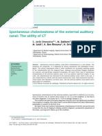 CT Cholesteatome