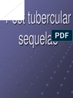 Post Tubercular Sequelae.123175034