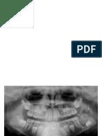DIAGNOSTICO MIXTAS