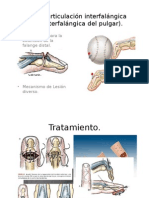 ZONA I (Articulación Interfalángica Distal, Interfalángica-2