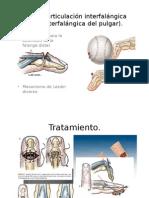 ZONA I (Articulación Interfalángica Distal, Interfalángica-2