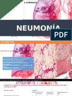 Neumonia y Tep