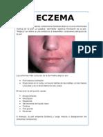 Dermatitis Eccematosa