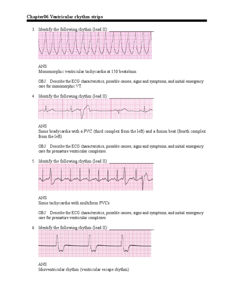 graphic relating to Printable Ekg Strips called c6R Electrocardiography Inside Medications