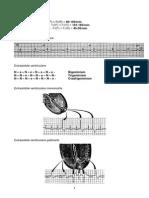 EKG Tulburari de Ritm Si de Conducere