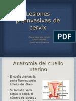lesiones preinvasivas