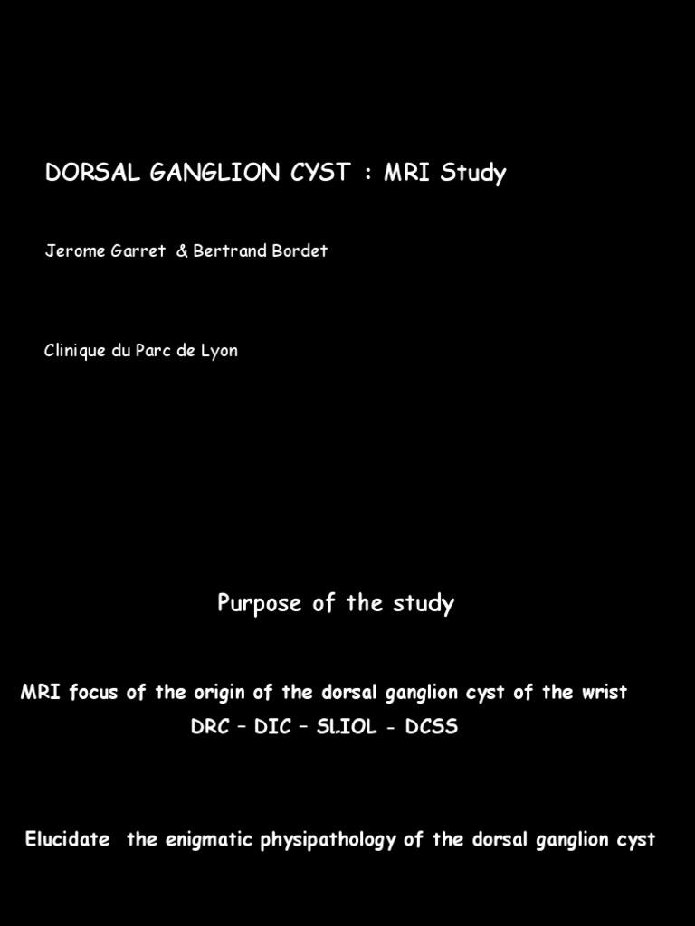 Kyste Mri Garret | Extracellular Matrix | Joints