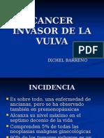 Cancerinvasordelavulva 100503191736 Phpapp01 (1)