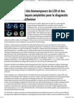 JIM.fr - Complémentarité Des Biomarqueurs Du LCR Et Des Marqueurs Des Plaques Amyloïdes