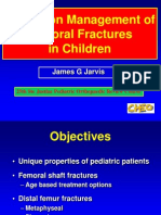 Managment Femoral Fractures