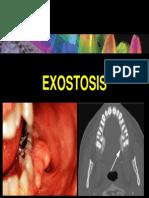 Exostosis 09082