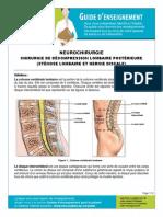 Chirurgie de Decompression Lombaire Posterieure