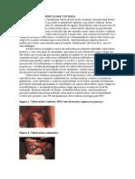 Tuberculose Cutanea, Descrição, Medicina