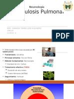 Tubeculosis en mexico