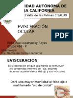 Evisceración Ocular