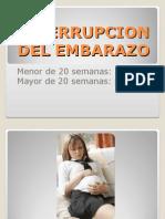 Interrupcion Del Embarazo