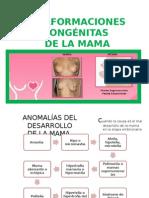 Malformaciones Congénitas de mamas