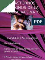 Trastornos de La Vulva y Vagina y Cervix