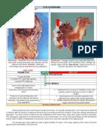 DDx Osteochondroma