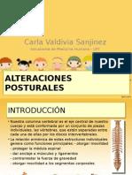 alteraciones posturales