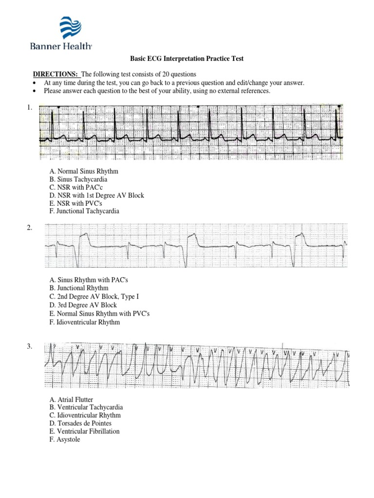 Ekg Study Guide Practice Test Browse Manual Guides
