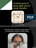 Face Bow Transfer