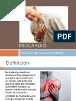 Infarto Agudo miocardio