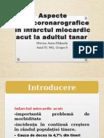 Aspecte Angiocoronarografice În Infarctul Miocardic Acut La Adultul