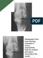 Rheumatology Pics